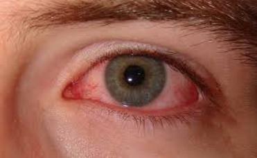 Paciente con síntomas y signos de sequedad ocular, condición también conocida como ojo seco | Dres. Ortuño