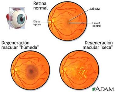 Información sobre la nueva lente intraocular en pacientes con degeneración macular con poca visión | Clínica Oftalmológica Dres. Ortuño